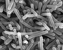 L. monocytogenes през сканиращ електронен микроскоп. Снимка от linktext
