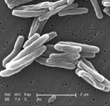 Снимка с електронен микроскоп на Mycobacterium tuberculosis, основния причинител на туберкулоза. Снимка: CDC