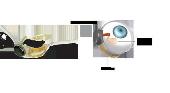 Илюстрация на част от системата Argus II, показваща имплантираните чрез хирургия в окото компоненти. Изображение: Second Sight