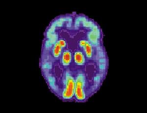 Изображение на мозък на човек с Алцхаймер, получено с PET скенер. То показва известна загуба на функция в темпоралния лоб.