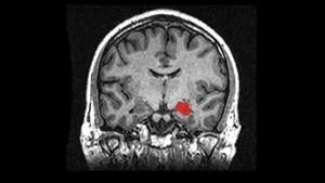 Изображение на хипокампуса (в червено) получено чрез ядрено-магнитен резонанс. Според учените, тази е една от зоните, чието развитие е индикатор за бъдещите езикови способности на децата.