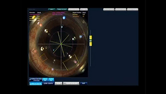 Операция на окото с апарата LenSx. Снимка: PrabhaEyeClinic