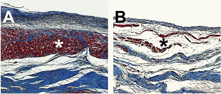 Снимка с микроскоп на свинска сърдечна тъкан увредена от инфаркт. Вляво (А) се вижда израстването на нова сърдечна тъкан (в червено) при приложение на хидрогела, за разлика от неподложената на лечението контрола вдясно (B). Снимка: Karen Christman, UC San Diego Jacobs School of Engineering