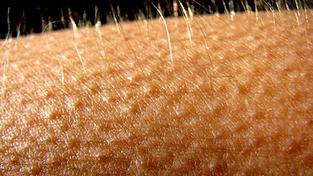 Настръхването на кожата, причинено от усещането за студено. Учените се надяват, че изследването им ще помогне в разработката на по-съвършени болкоуспокоителни, без страничния ефект от притъпяване на усещанията. Снимка: MaryLane