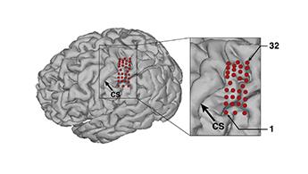 Илюстрация на разположението на електродите върху мозъка на Тим Хеймс. Изображение: Pitt/UPMC/plosone.org