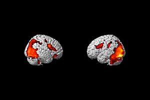 Изображение получено с функционален ядрено-магнитен резонанс (fMRI), показващо активиране на зони в мозъка. Снимка: NIH