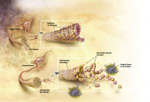 В мозъка на хора, засегнати от болестта на Алцхаймер, се образуват струпвания от тау протеини, което води до загуба на функционалността на невроните. Това от своя страна се свързва със загуба на паметта (кликни за по-голяма версия). Илюстрация: National Institute on Aging/U.S. National Institutes of Health