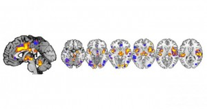Изображения получени с ядреномагнитен резонанс на мозъка на участници в експеримента. Изображение: University of Colorado Boulder