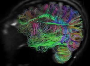 Изображение на мозъчната активност, получено с ядреномагнитен резонанс. Източник: NIH