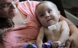 Бебето Каиба започнало да диша съвсем нормално след операцията. Снимка: University of Michigan Health System