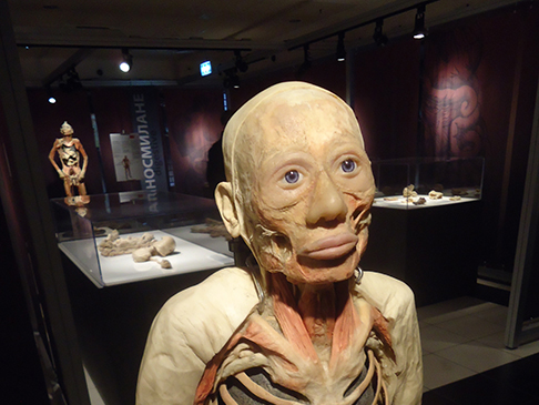 """Експонат от изложбата """"Човешкото тяло - разкрито и реално"""" в ЦУМ. Повече снимки - долу в страницата."""
