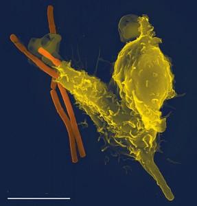 Образ, получен със сканиращ електронен микроскоп, на неутрофил (вид имунна клетка - в жълто), поглъщащ бактерии на Bacillus anthracis (причинителя на антракс - в оранжево). Имунната система има различни стратегии спрямо различните видове патогени. Снимка: Фолкер Бринкман за PLOS Pathogens (CC-BY)