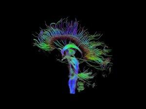 Реконструкция на невронните връзки в човешки мозък чрез техниката DTI, използвана в изследването. Изображение: Thomas Schultz (CC BY-SA 3.0)